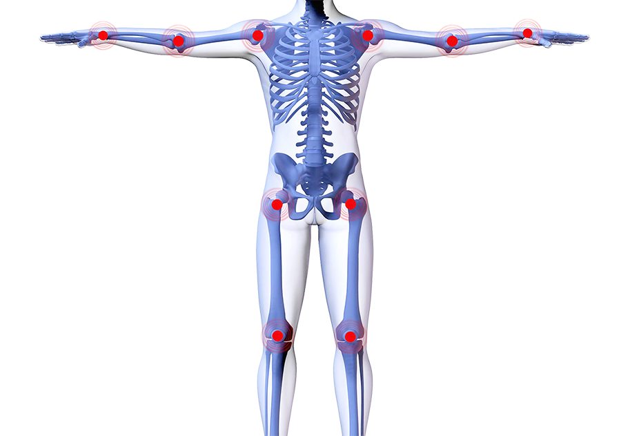 articulations-corps-affectees-par-arthrose